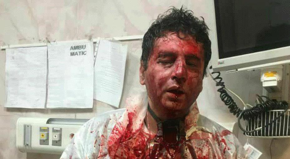 عکس/جزئیات ماجرای ضرب و شتم پزشک بیهوشی از سوی همراهان یک بیمار در شهر پیرانشهر